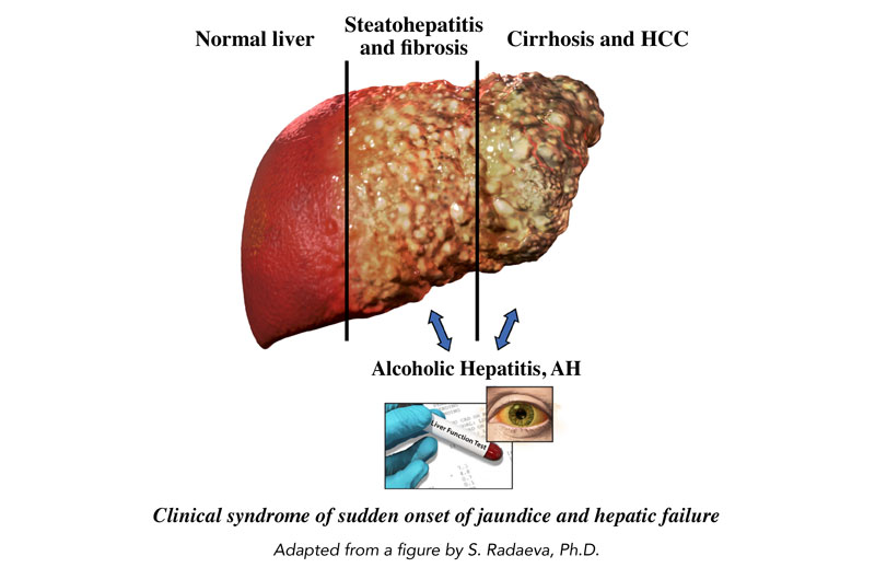 An image of the progression of a diseased liver